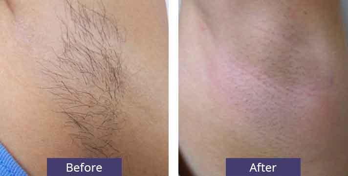 A Before and After Comparison of a client that received a laser hair removal treatment at seattle plastic surgery