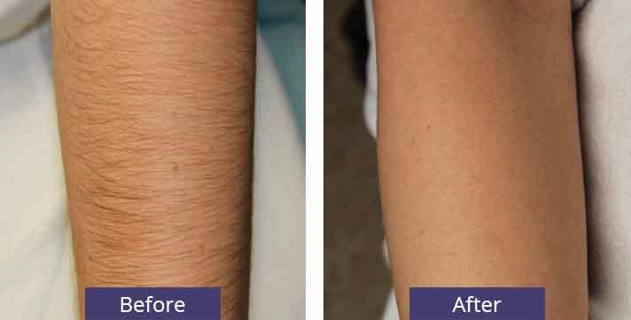 Laser Hair Removal Specials Seattle Plastic Surgery