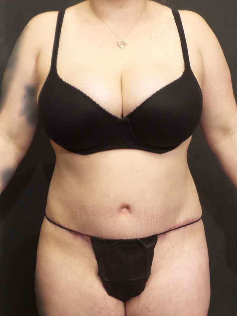 An After photo of a Tummy Tuck with Liposuction Plastic Surgery by Dr. Craig Jonov
