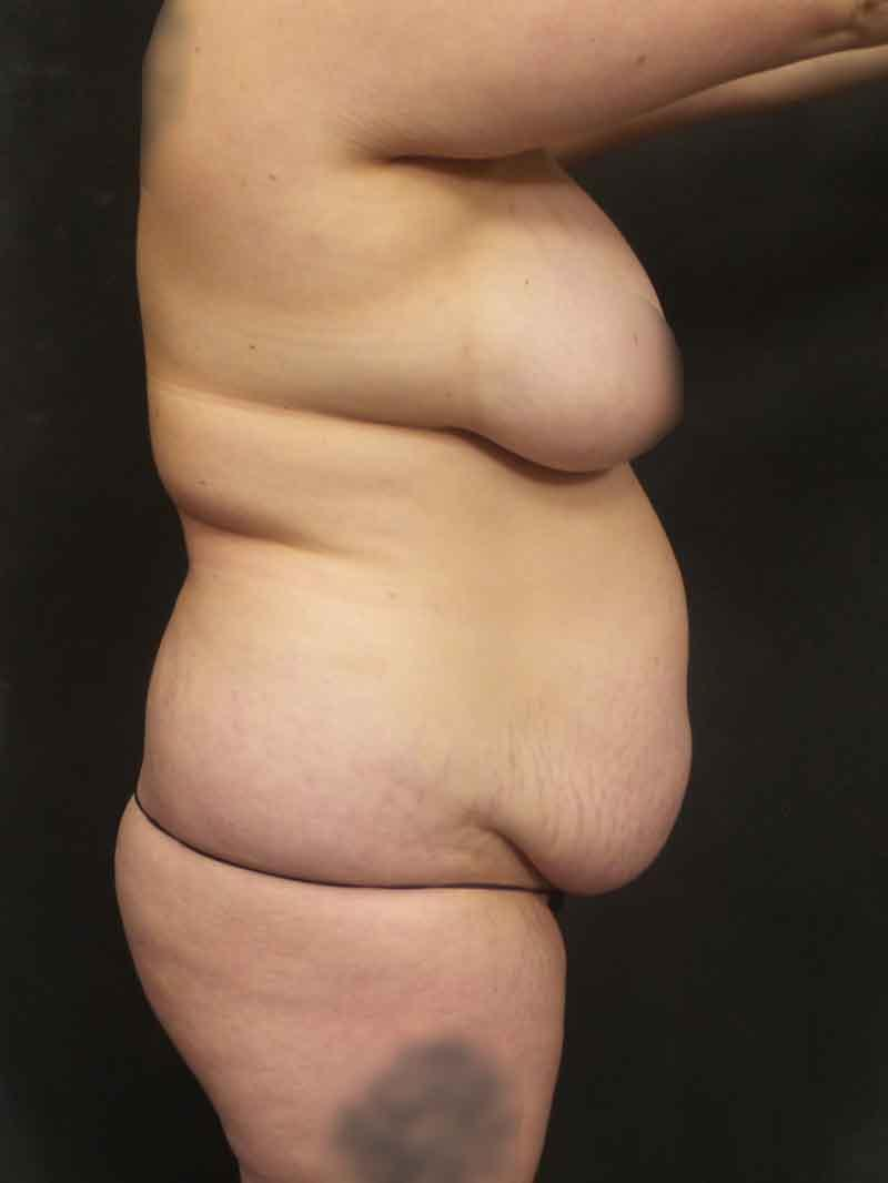 A Before photo of a Tummy Tuck with Liposuction Plastic Surgery by Dr. Craig Jonov