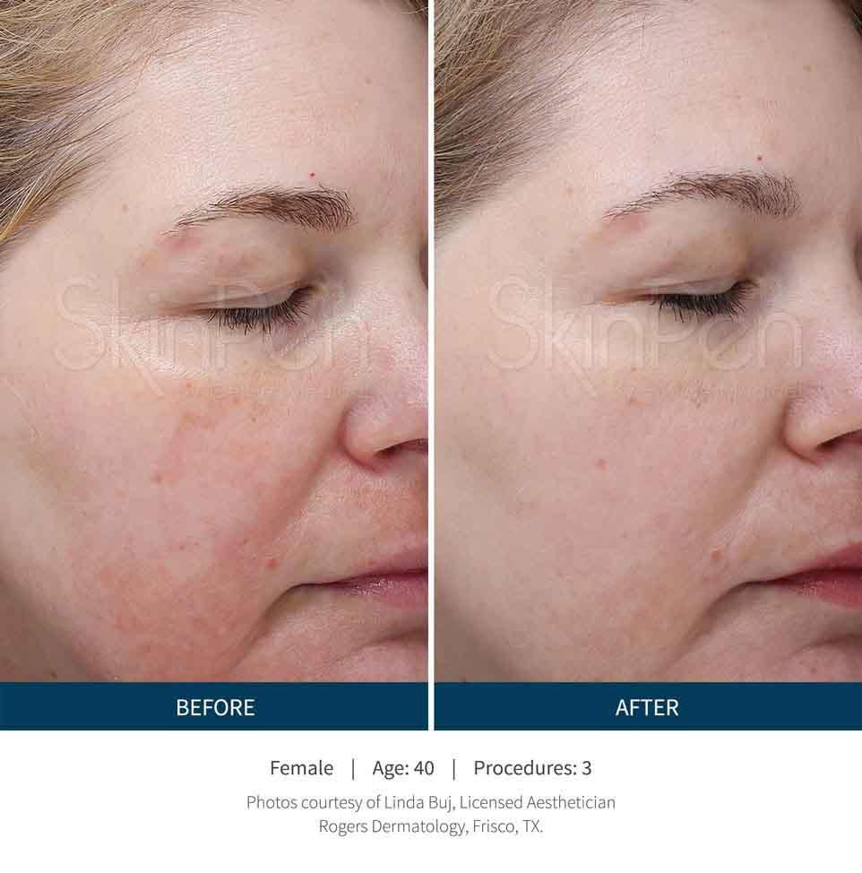A Before and After Microneedling treatment in Seattle
