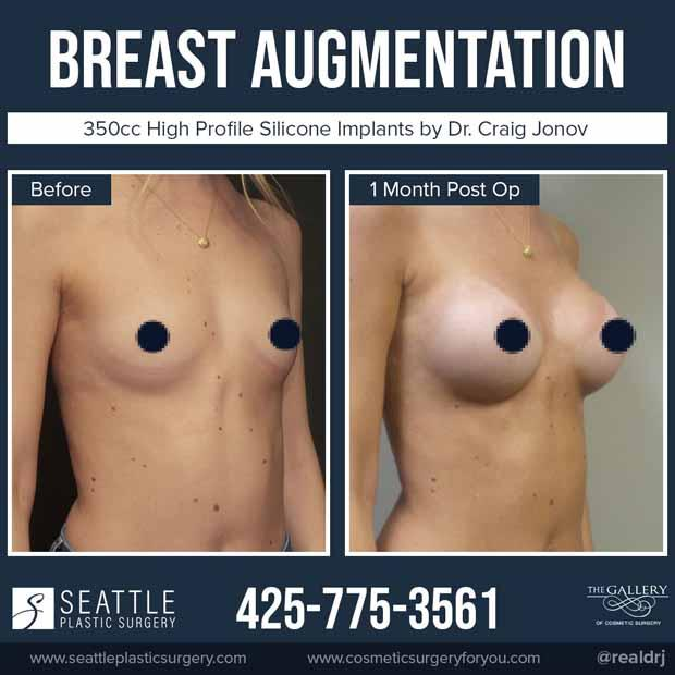 A Before and After of a Breast Augmentation Plastic Surgery by Dr. Craig Jonov