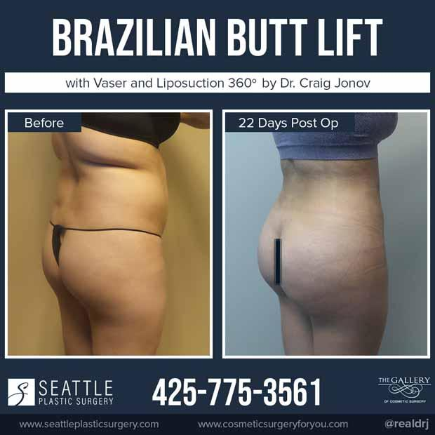 A Before and After photo of a Brazilian Butt Lift Plastic Surgery by Dr. Craig Jonov