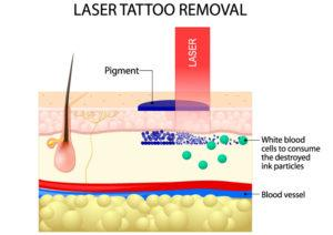 Illustration Laser Tattoo Removal in Seattle and Tacoma