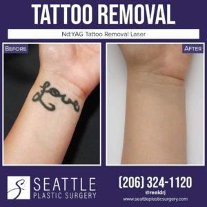 Image of a tattoo removal before and after.