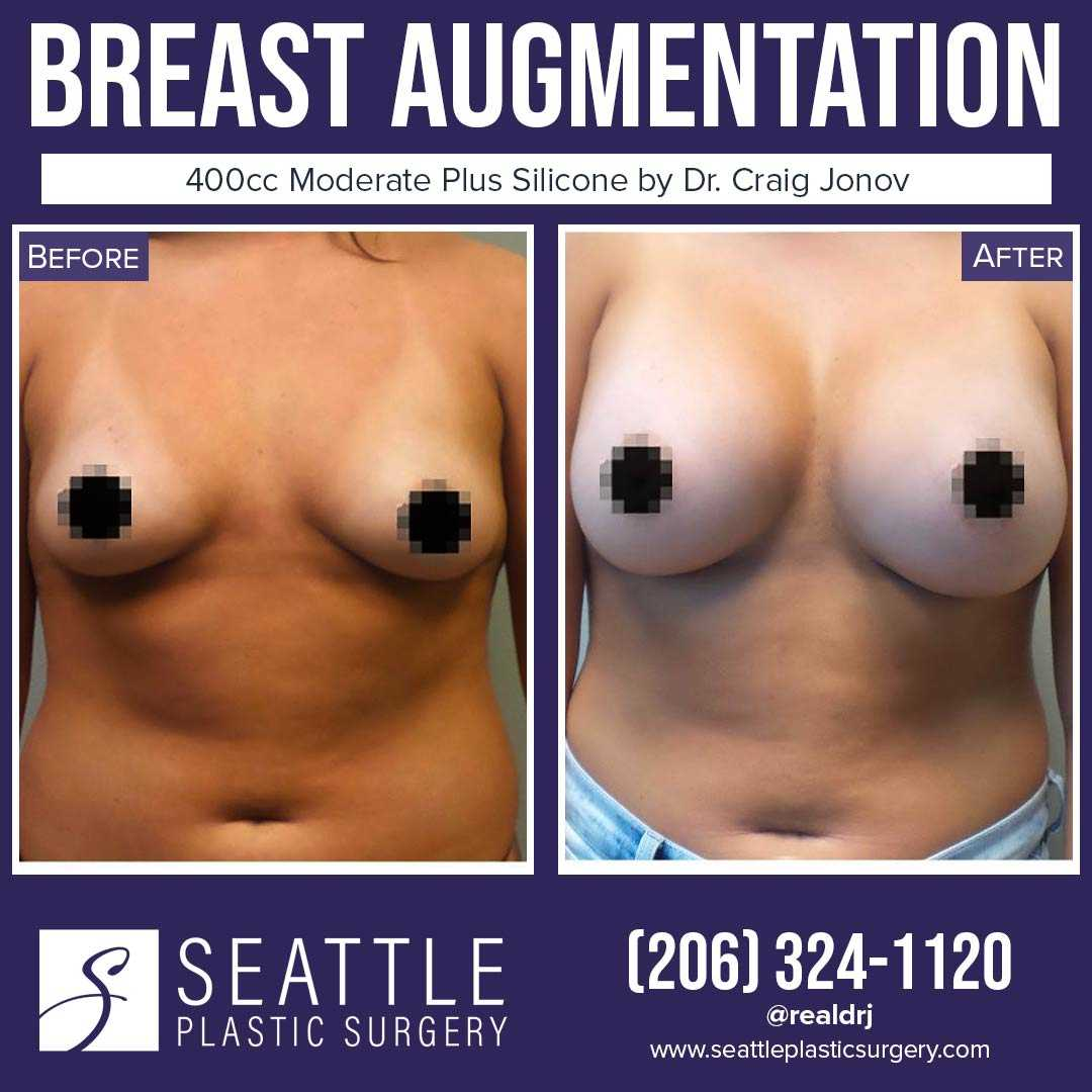 A Before and After photo of a Breast Augmentation Plastic Surgery by Dr. Craig Jonov