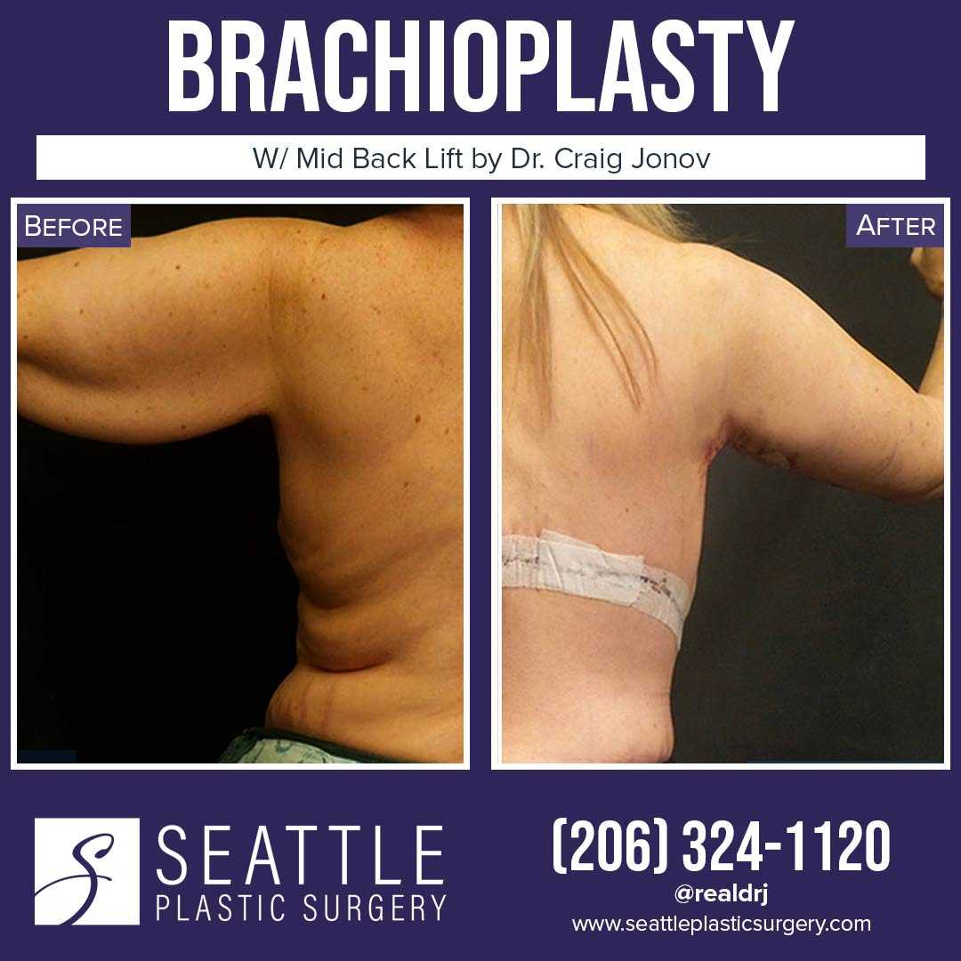A Before and After photo of a Brachioplasty Plastic Surgery by Dr. Craig Jonov
