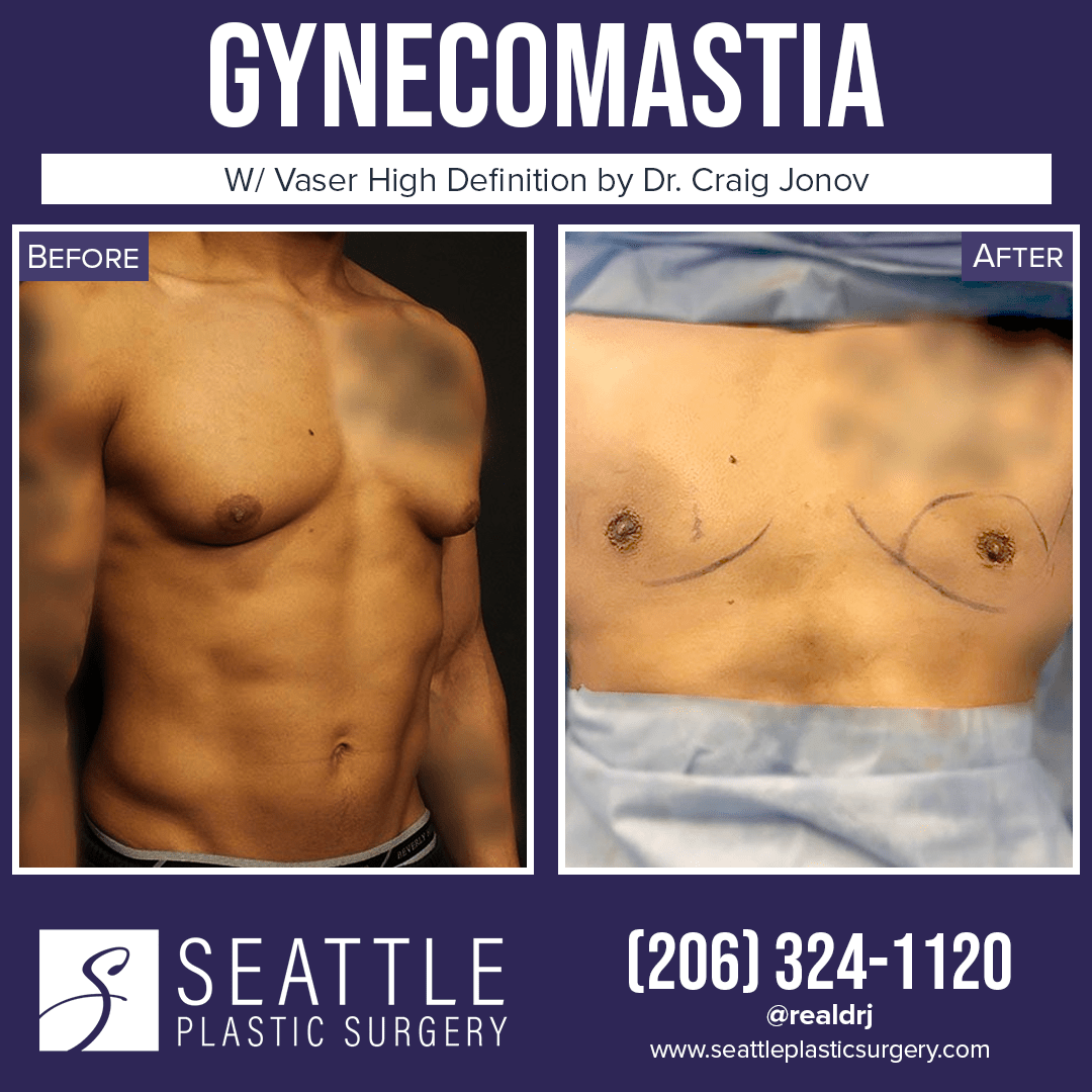 A Before and After Photo of a Plastic Surgery for Gynecomastia By Dr. Craig Jonov