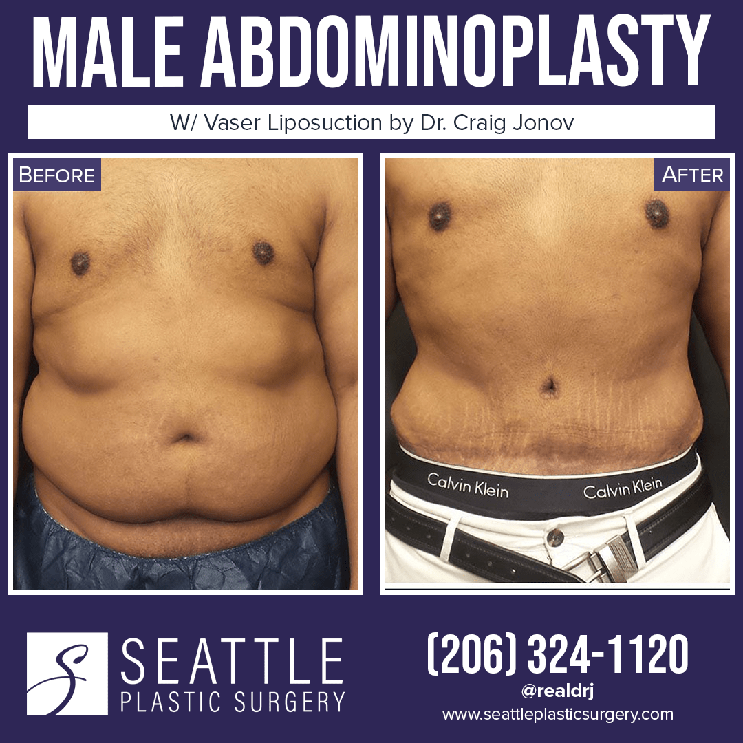 A Before and After photo of a Male Abdominoplasty Surgery With Liposuction by Dr. Craig Jonov