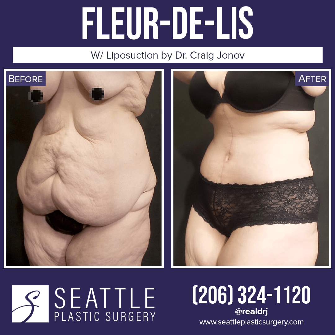 A Before and After photo of a Fleur-De-Lis Surgery With Liposuction by Dr. Craig Jonov