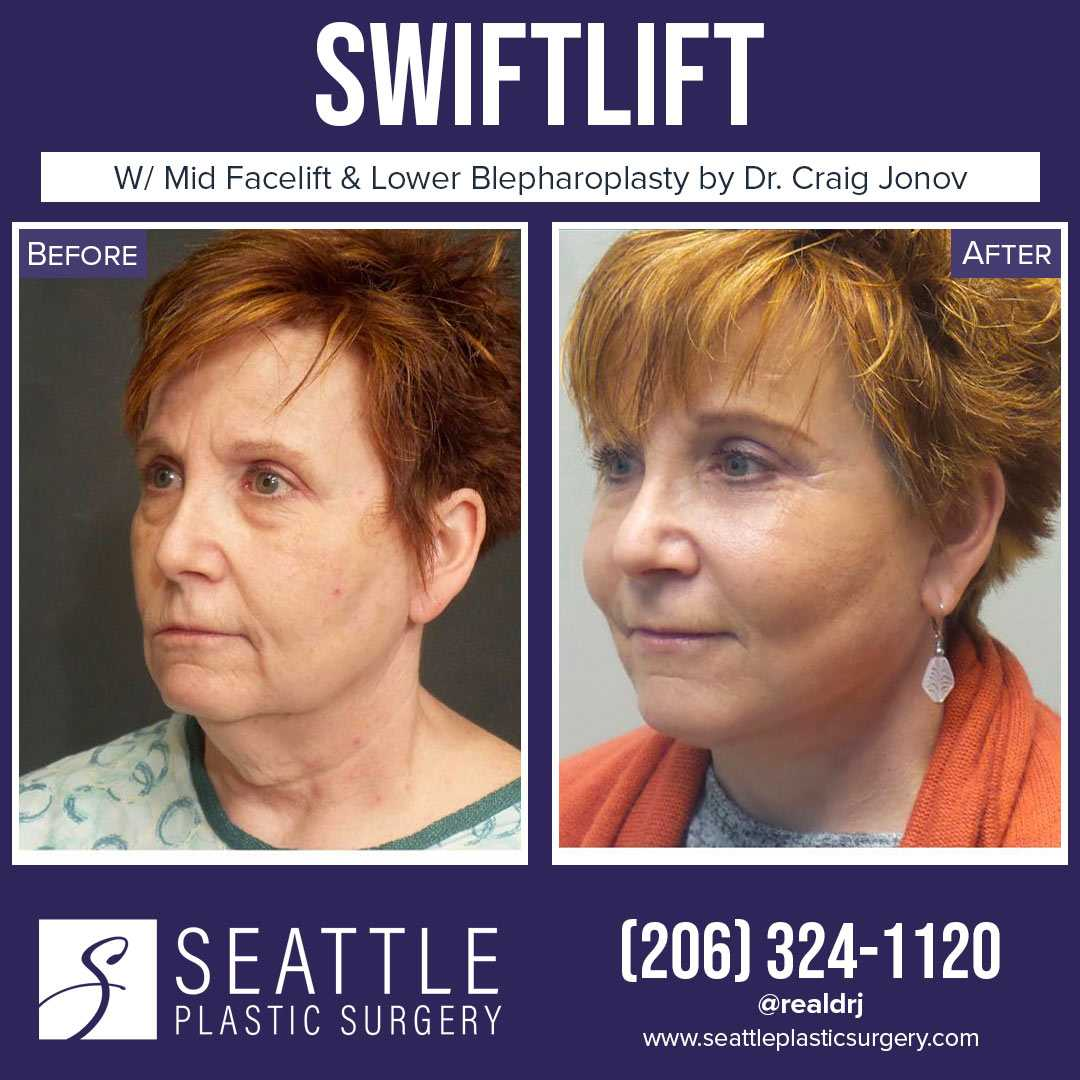 A Before and After photo of a Swiftlift Plastic Surgery by Dr. Craig Jonov