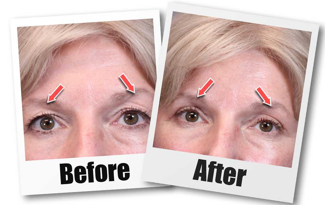 A Before and after picture of a patient who received a Blepharoplasty plastic surgery treatment