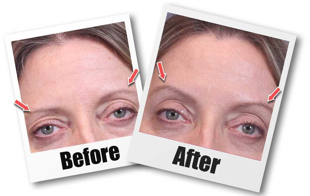 A Before and after picture of a patient who received a Brow Lift plastic surgery treatment