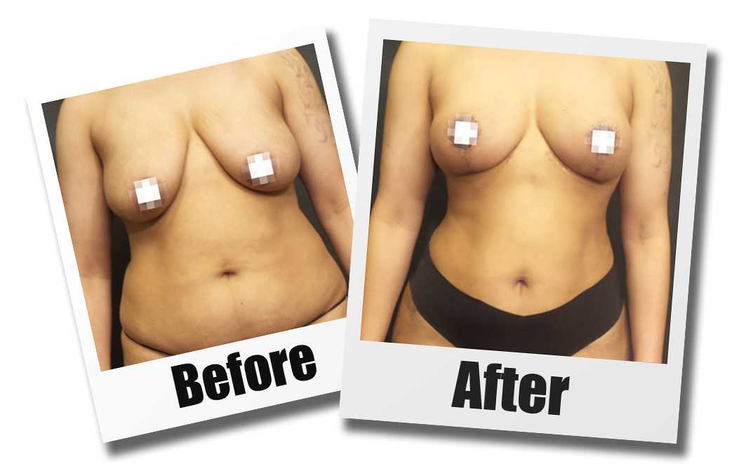Before and After Photos of a patient who received a breast lift plastic surgery