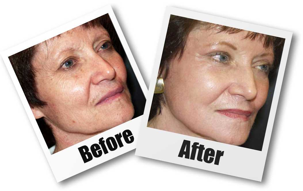 A Before and after picture of a patient whop received a CO2 laser plastic surgery treatment