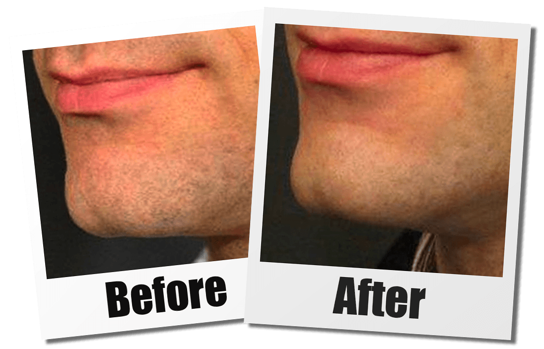 A Before And After Image Of A PAtient Who Received a Chin Plastic Surgery At Seattle Plastic Surgery