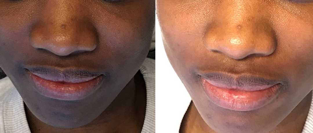 A Before and After Image Of a Patient Who Received a Dermaplaning Procedure At Seattle Plastic Surgery