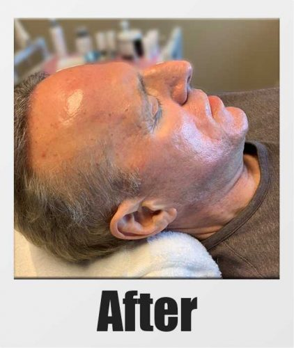An After Photo of a patient who received a microneedling + PRP session in Kirkland Seattle Bellevue