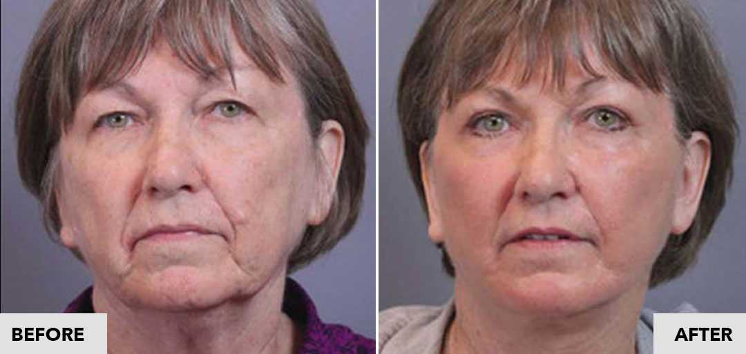 Before and After image of a facelift by Dr. Santos in Seattle Plastic Surgery