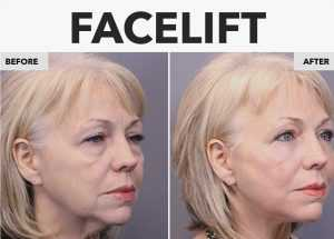 Image of a Before and After photo of a facelift   Seattle Plastic Surgery