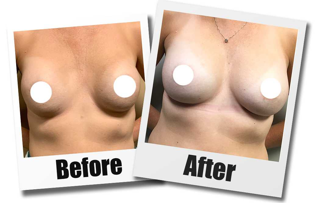 A Before and After photo of a Breast Revision Plastic Surgery by Dr. Craig Jonov
