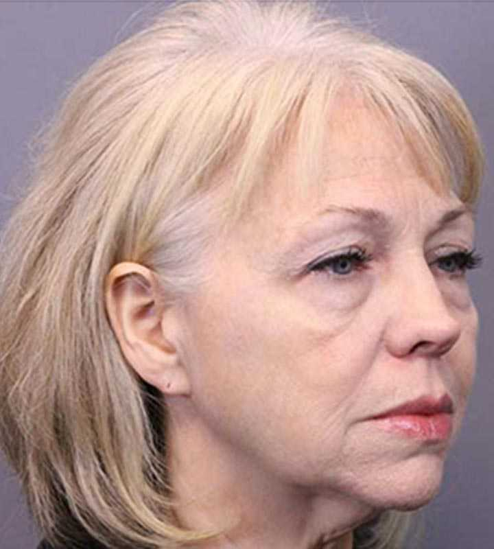 Image of a before facelift procedure