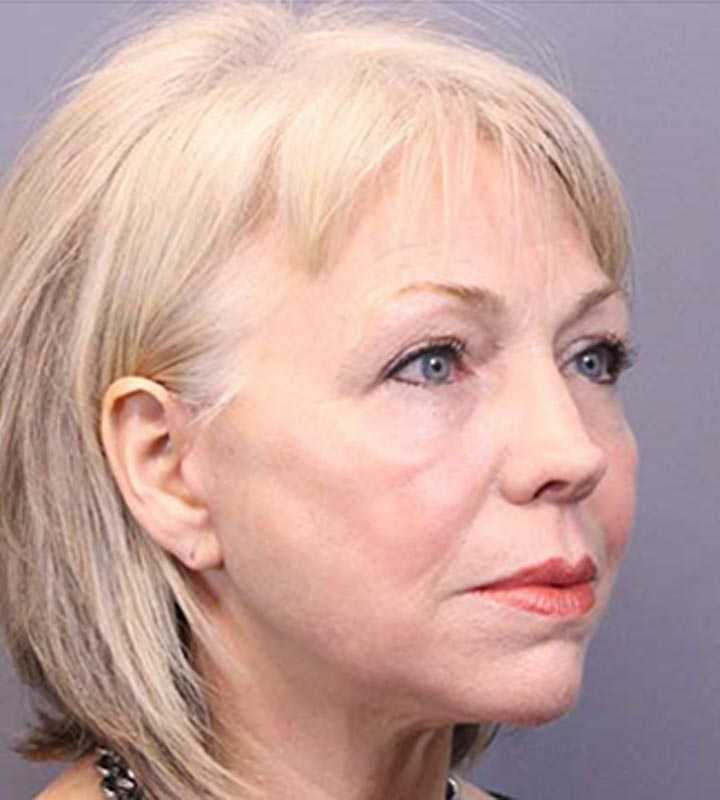 Image of an after facelift procedure