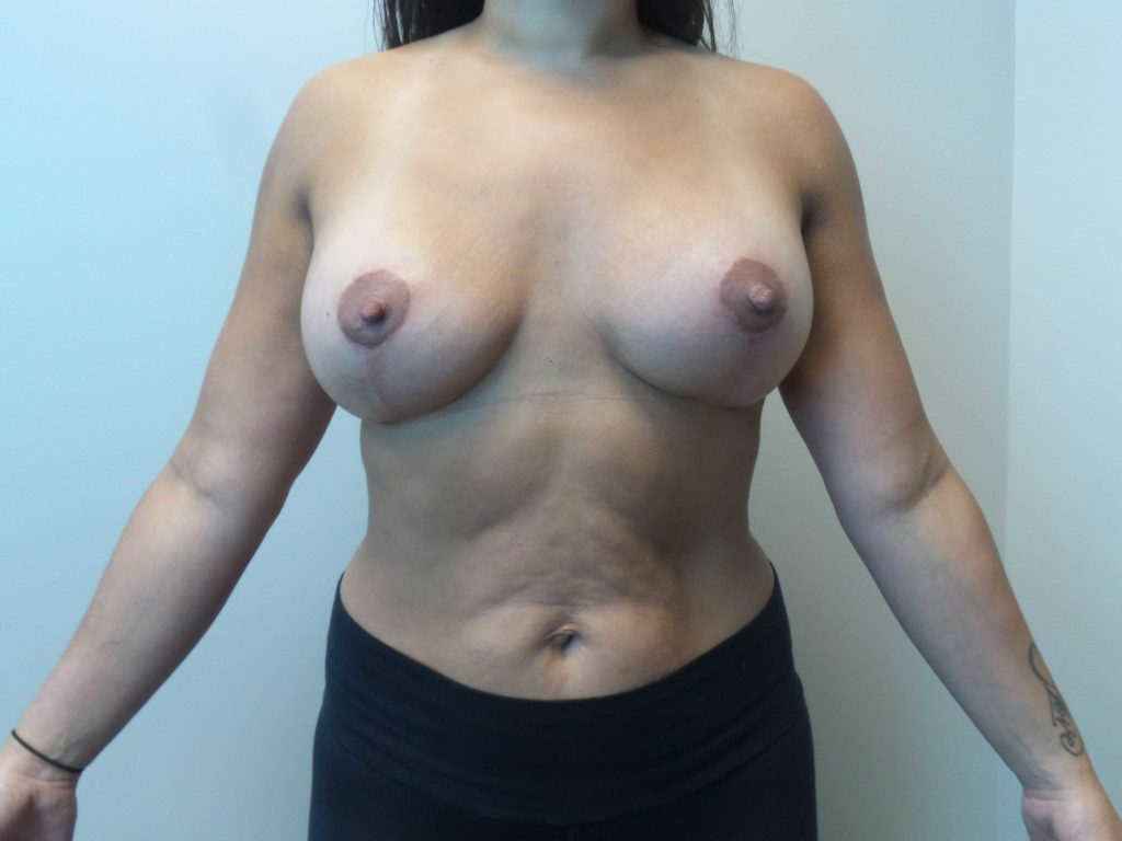 Nude Girls With Breast Implants
