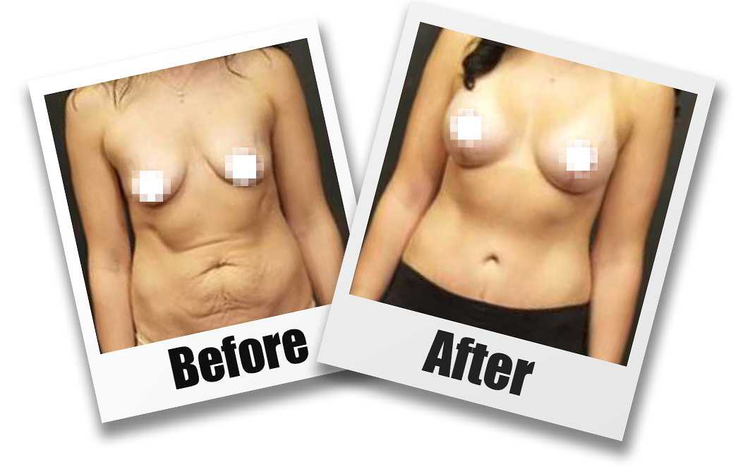A Before and After photo of a Breast Augmentation With Lift Plastic Surgery by Dr. Craig Jonov