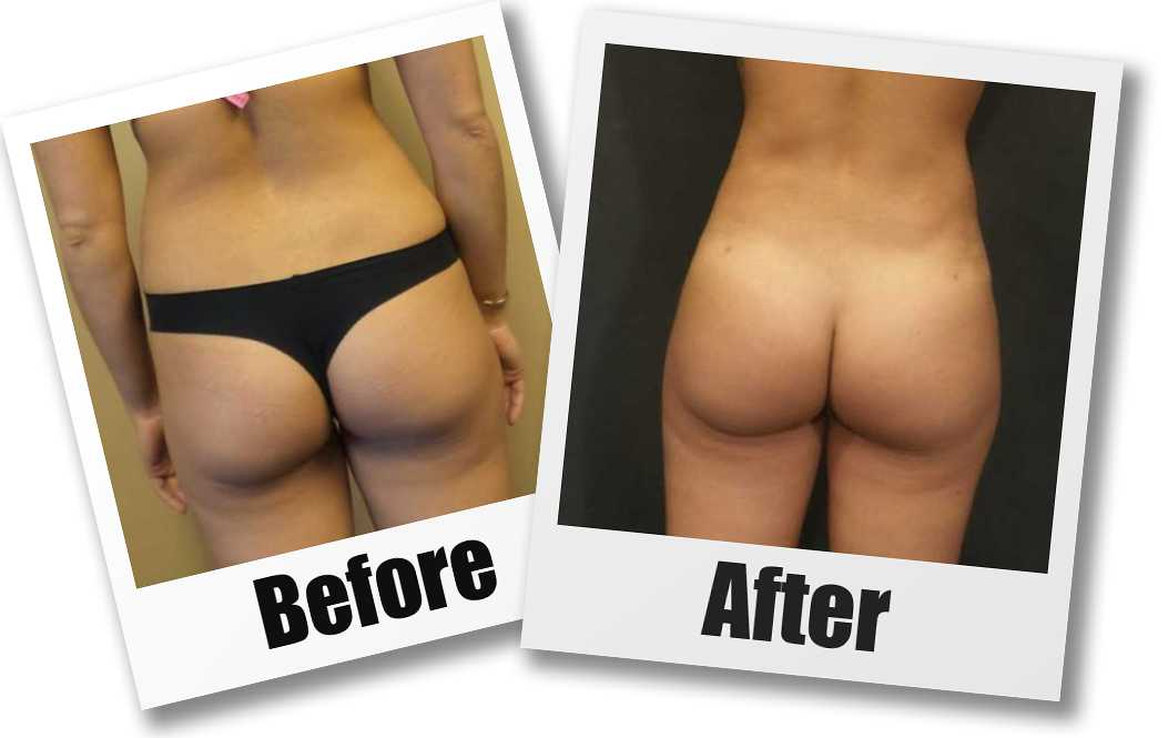 A Before and After photo of a Liposuction by Dr. Craig Jonov