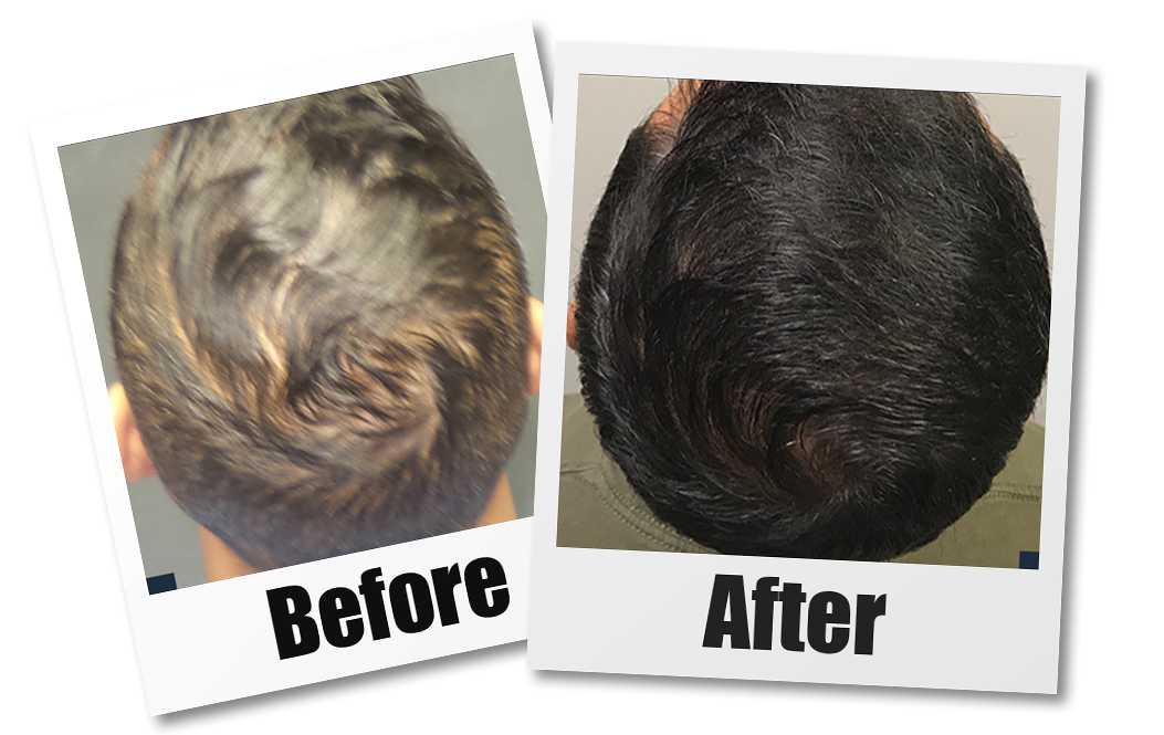 A Before and after of a patient who received a PRP hair restoration