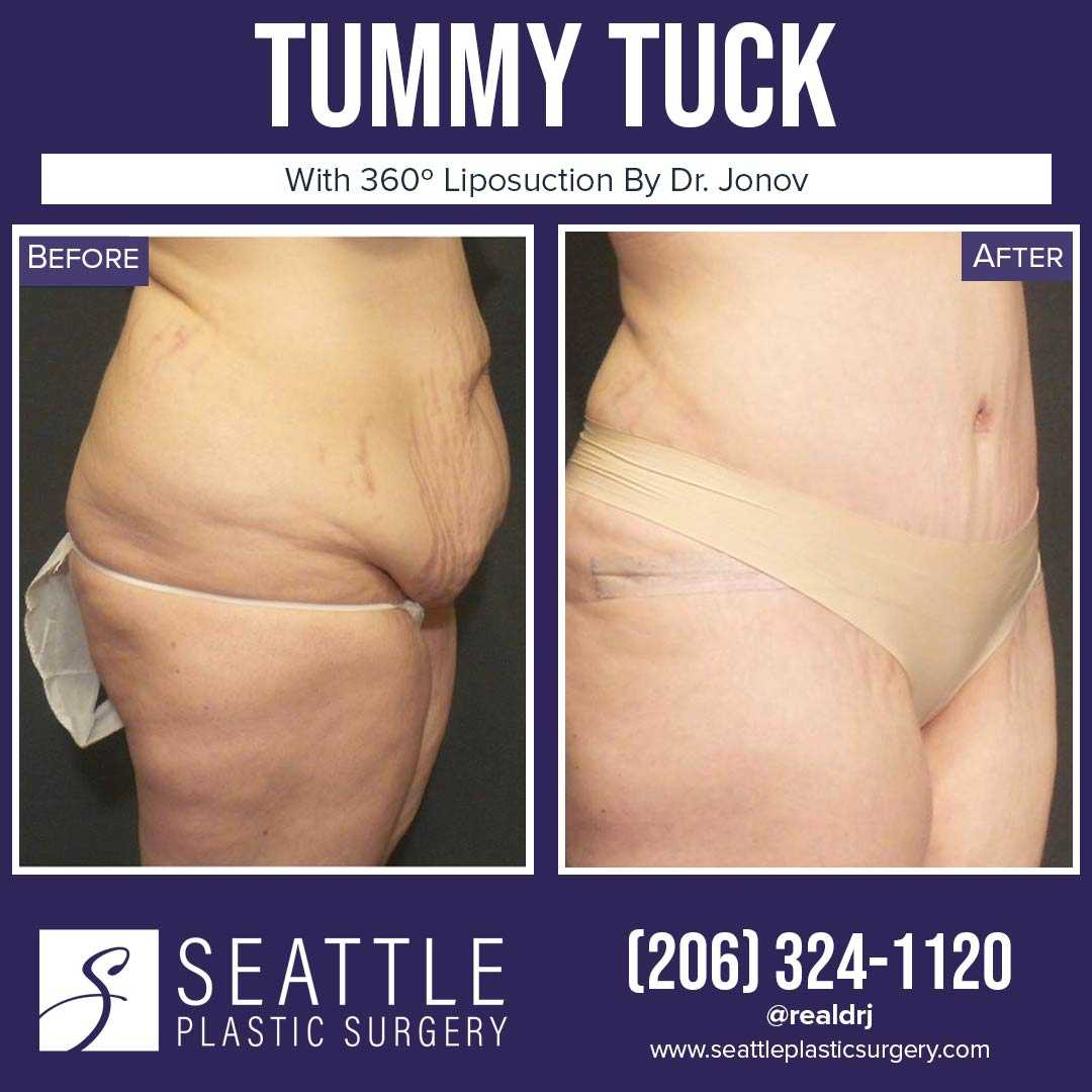 A Before and After photo of a Tummy Tuck Plastic Surgery by Dr. Craig Jonov