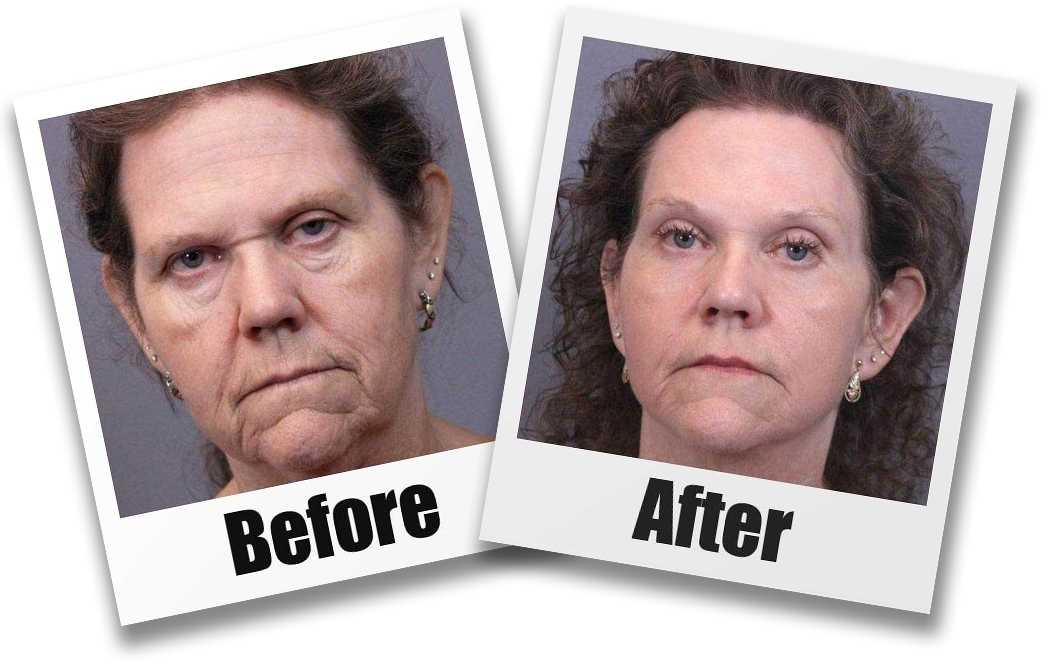 A Before And After Image of A Patient who Received a Browlift Plastic Surgery