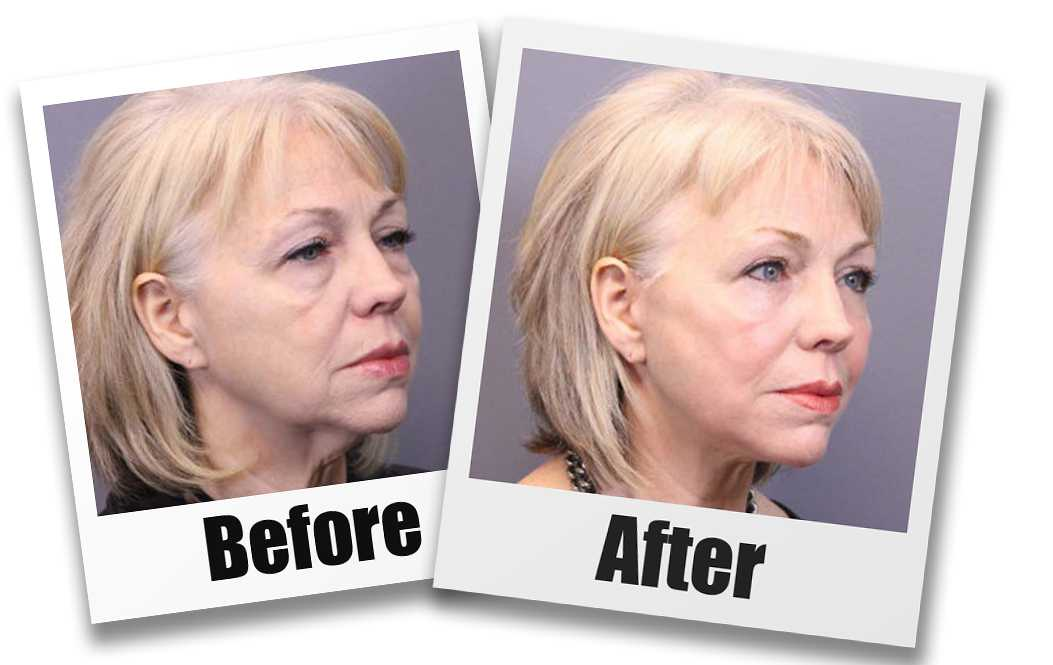 A Before and after picture of a patient who received a Face Lift plastic surgery treatment