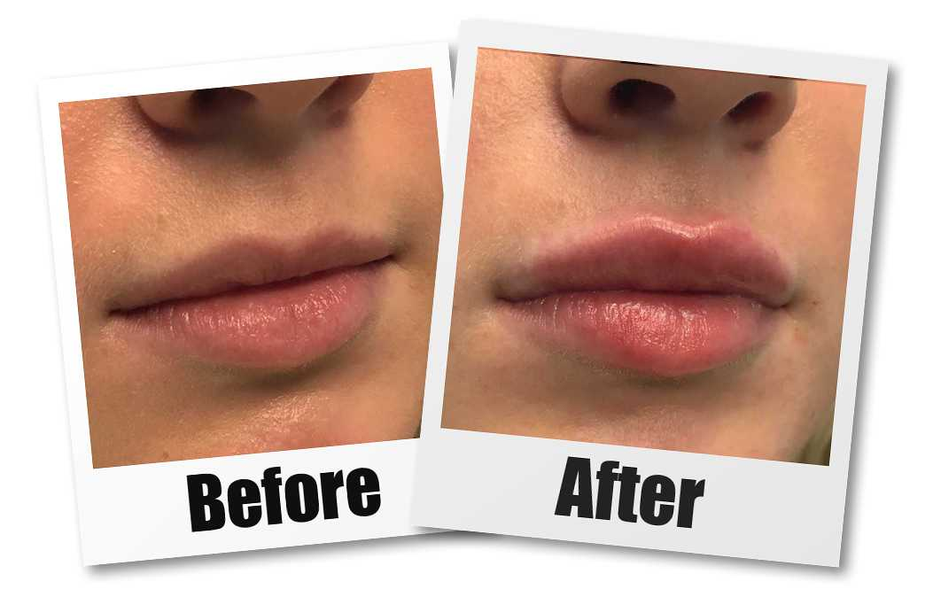 a before and after photo of a patient who received a lip filler treatment