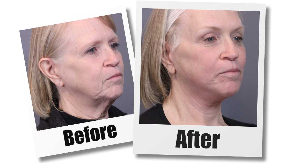 A Before and After Photo of a patient who received a mini facelift plastic surgery