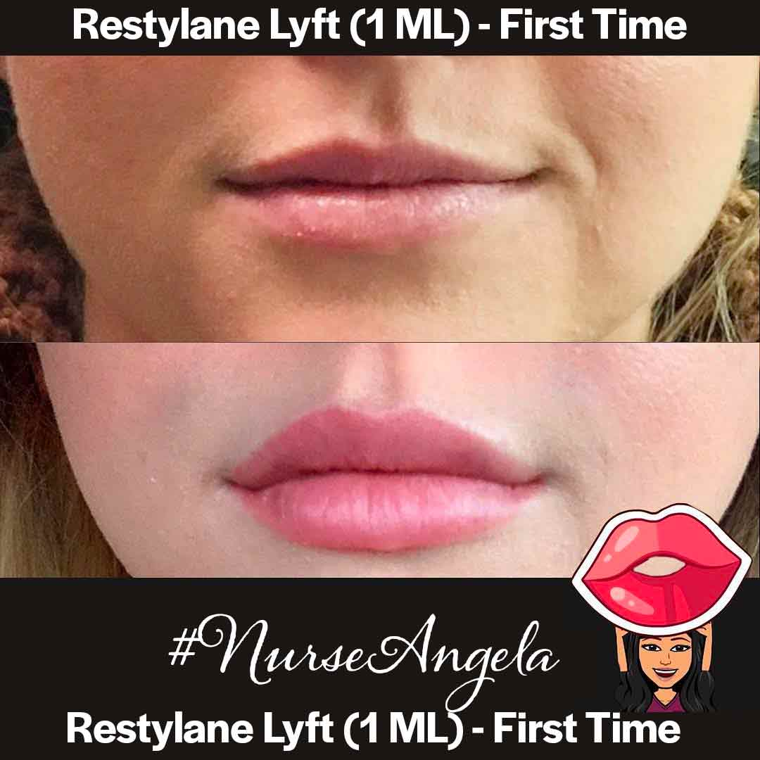 A Before and After Set Of Photos of a patient who received a Restylane-L treatment
