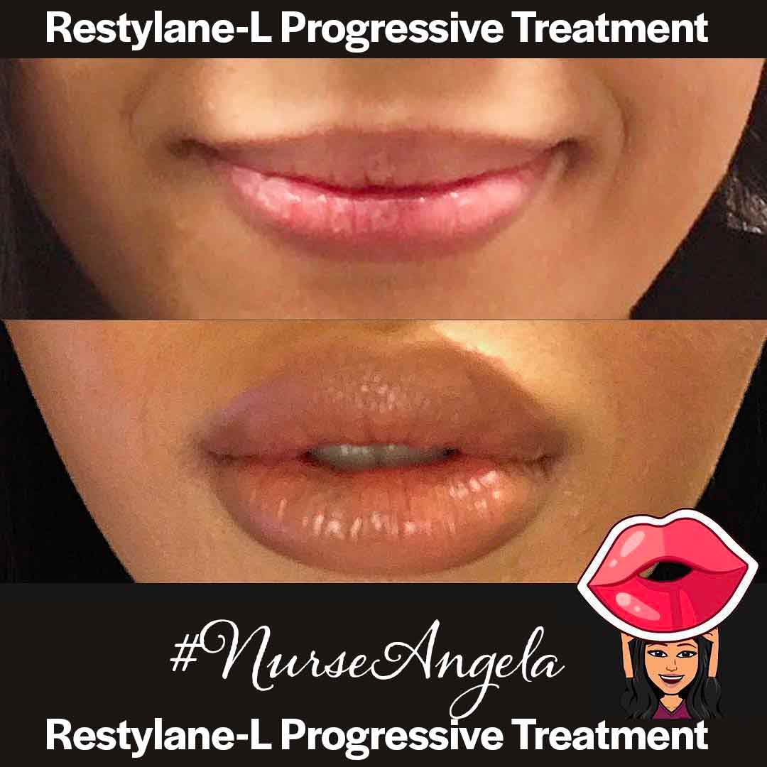 A Before and After Set Of Photos of a patient who received a Restylane Lyft treatment