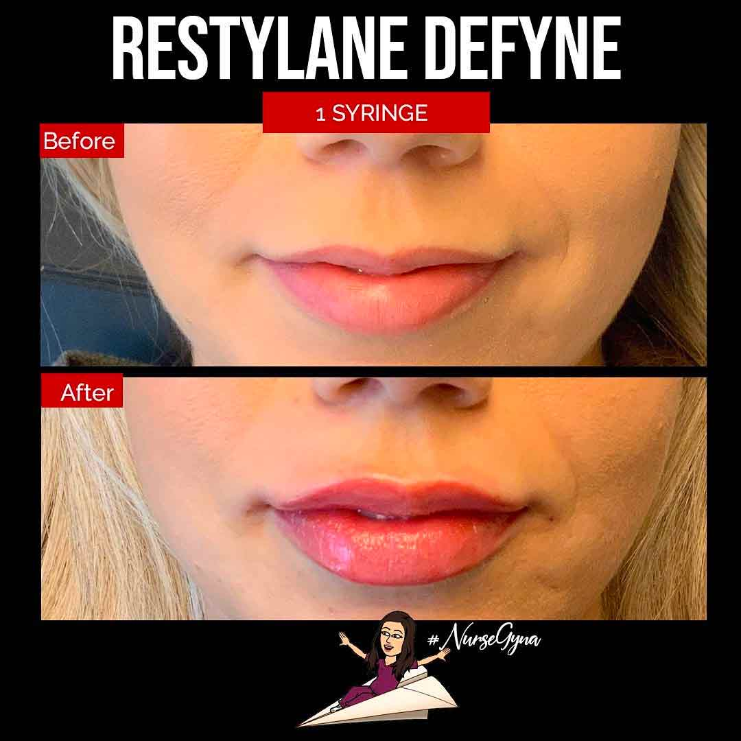 A Before and After Set Of Photos of a patient who received a Restylane refyne treatment