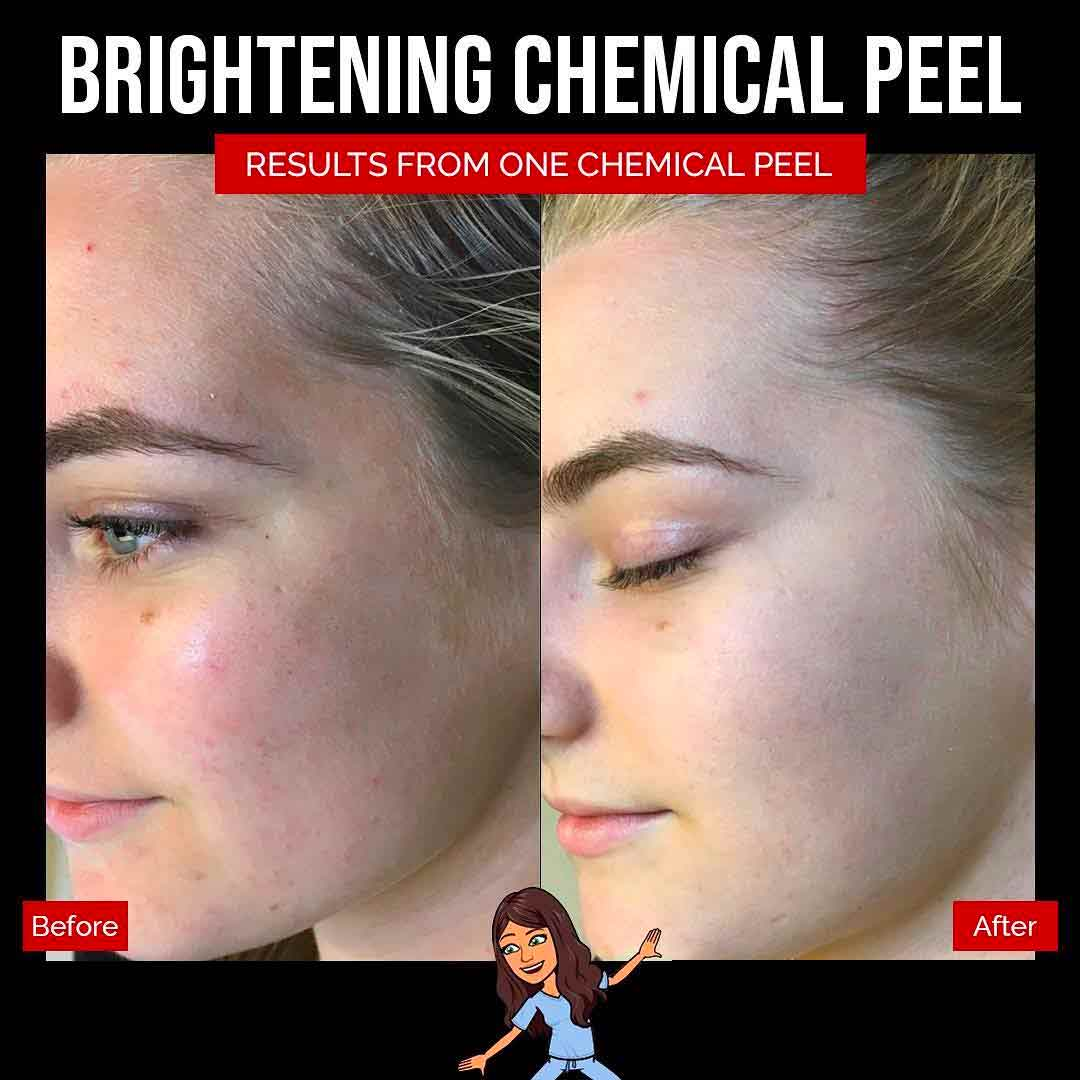 A Before and After Set Of Photos of a patient who received a Chemical peel treatment