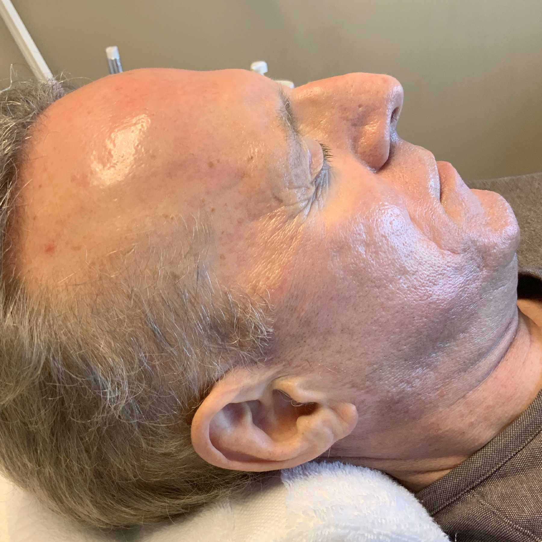 An After photo of microneedling in Seattle and Tacoma