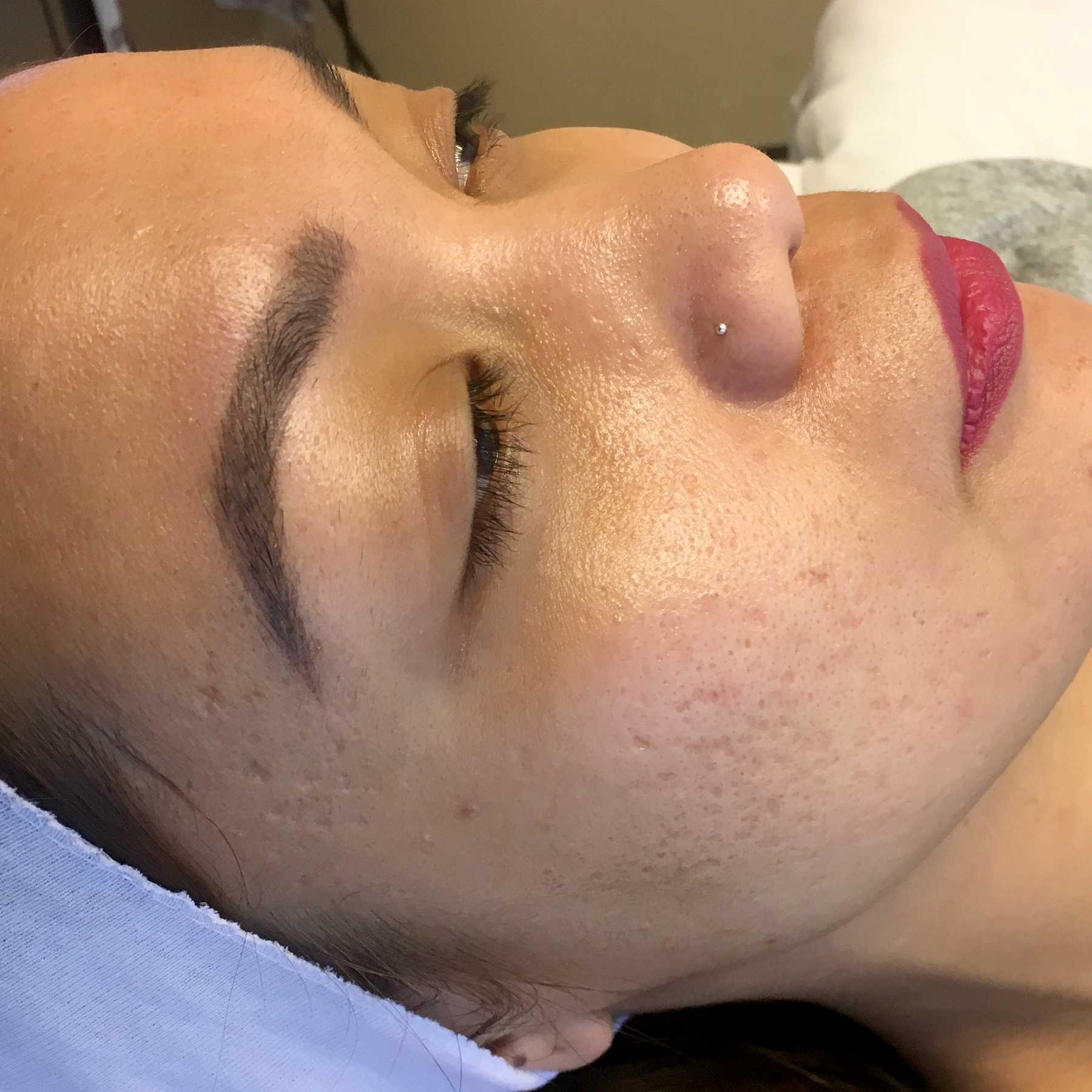 A Before photo of a microneedling procedure in Seattle and Tacoma