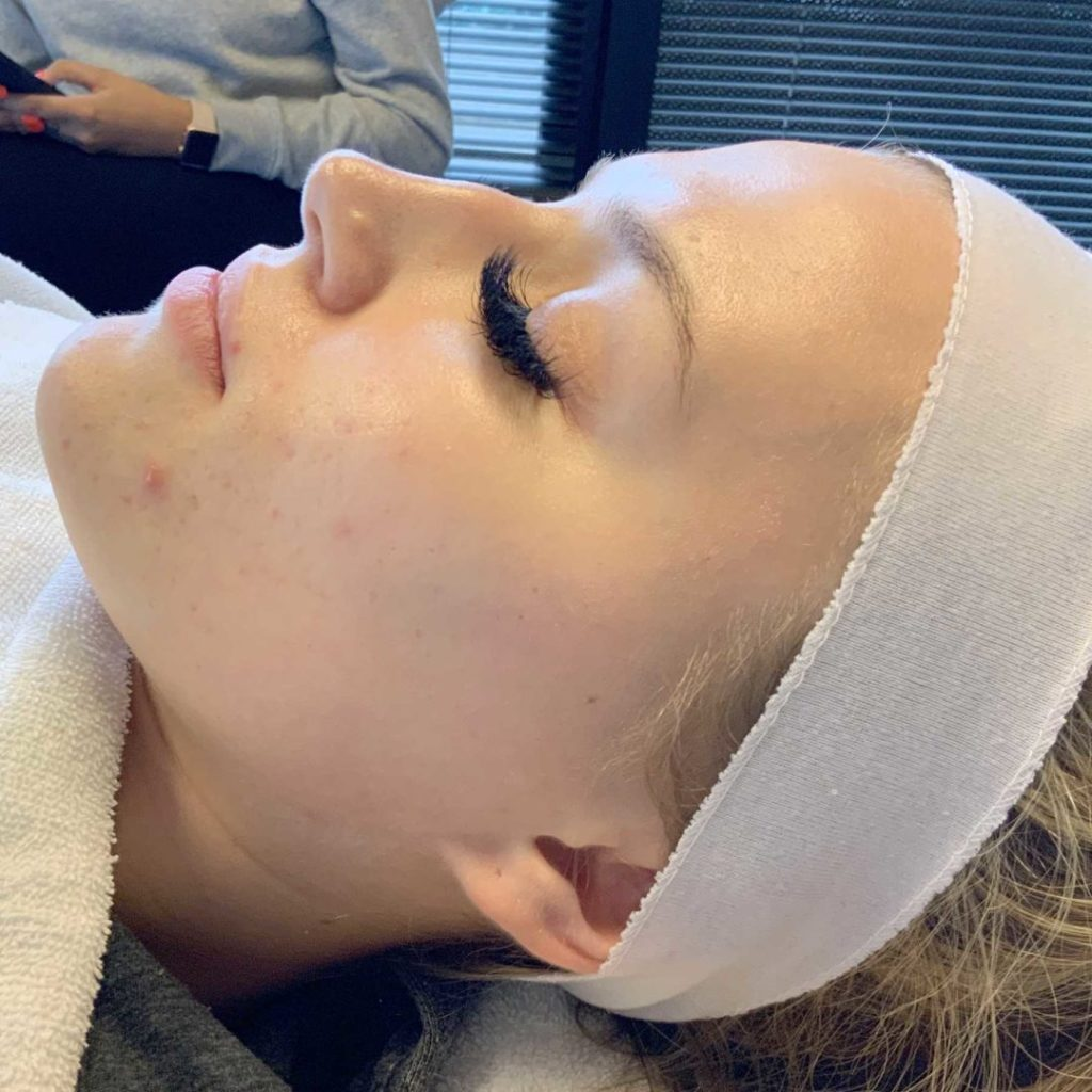 A Before photo of a Chemical Peel procedure by Master Estheticians in Seattle and Tacoma