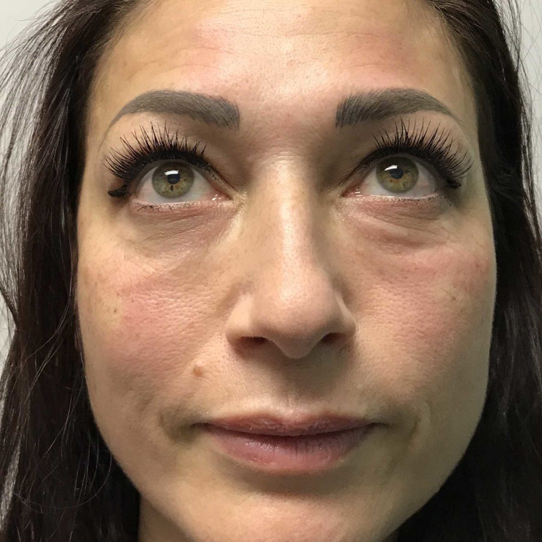 An After photo of Tear Trough Filler in Seattle and Tacoma