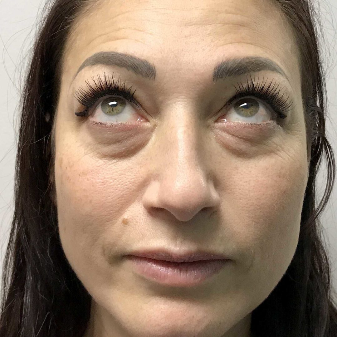 A Before photo of Tear Trough Filler in Seattle and Tacoma