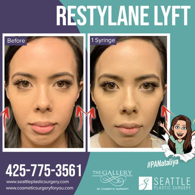 An Instagram Before and After of cheek filler by PA Nataliya in Seattle and Tacoma