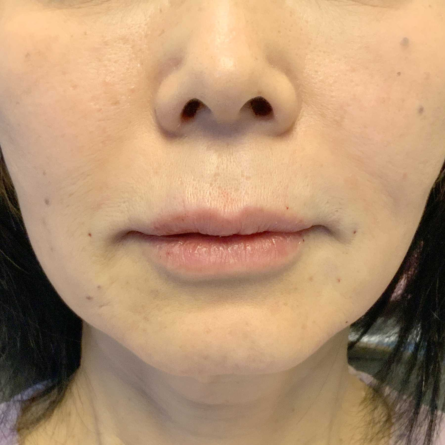 An After photo of Restylane Defyne Nasolabial Fold Filler by Injector Nataliya in Seattle and Tacoma