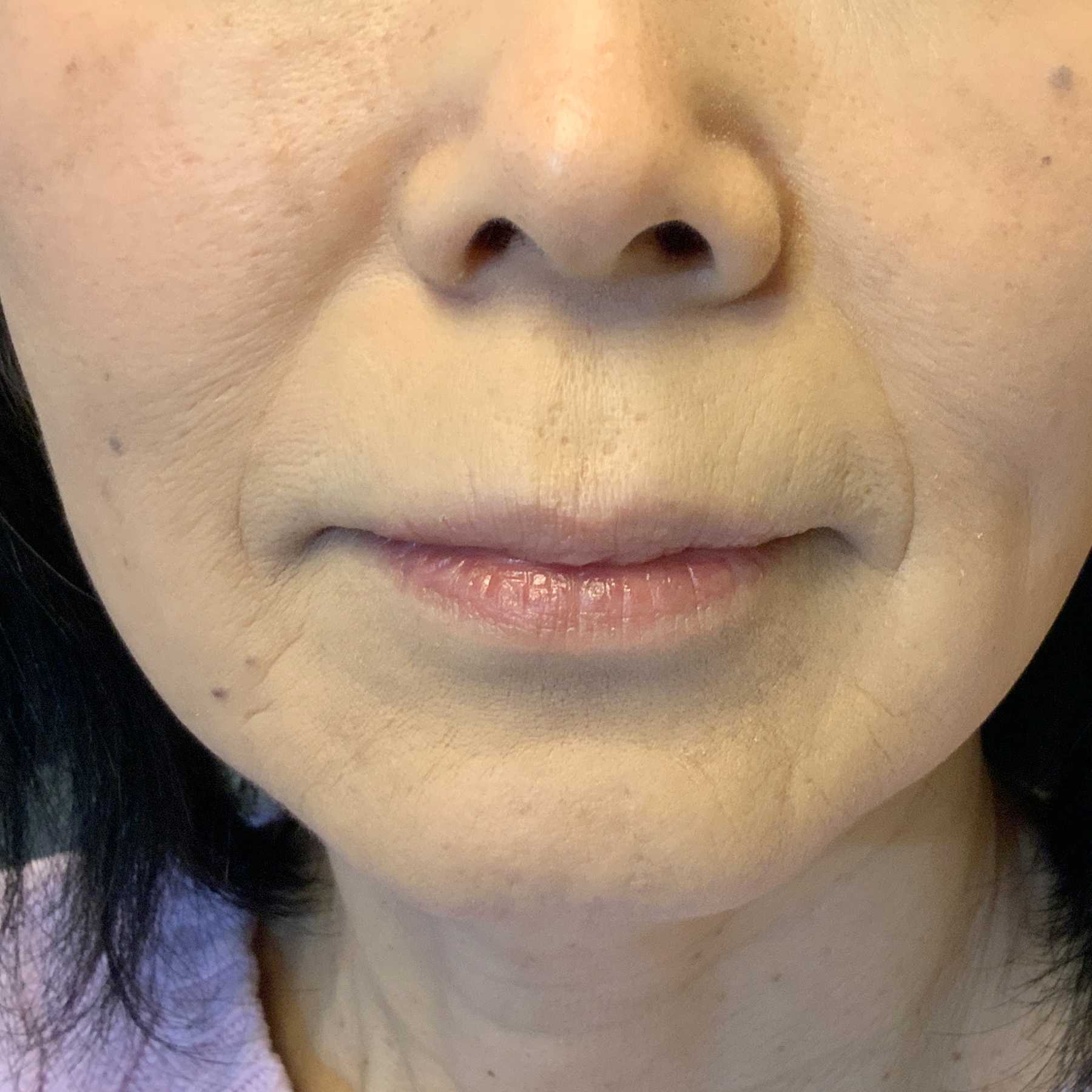 A Before photo of Restylane Defyne Nasolabial Fold Filler by Injector Nataliya in Seattle and Tacoma