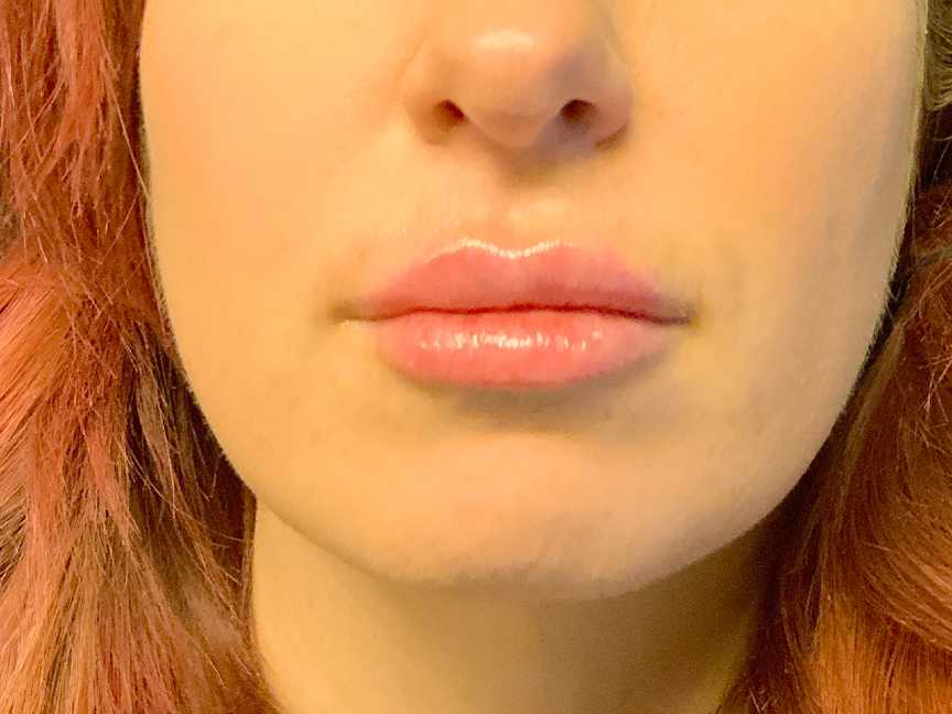 An After photo of Restylane L Lip Filler Injections In Seattle and Tacoma