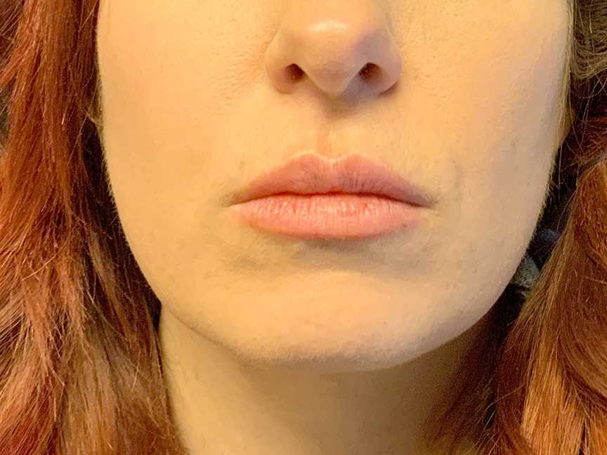 A Before photo of Restylane L Lip Filler Injections In Seattle and Tacoma